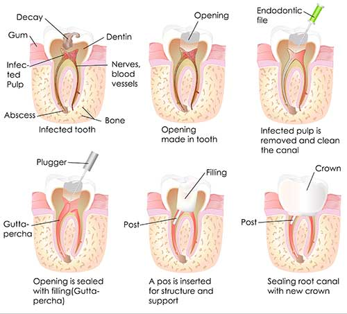 Root Canal Therapy in Winchester