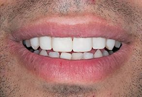 Winchester Before and After Veneers