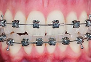Before and After Dental Braces in Winchester